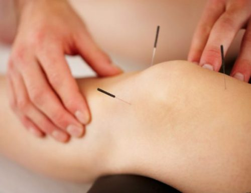 Getting to the Point: Acupuncture at WFHC